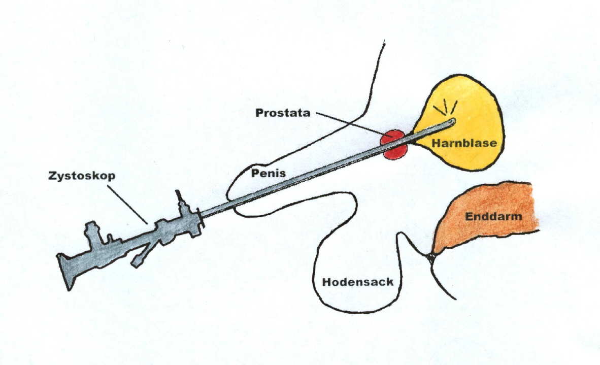 vorbereitung prostata untersuchung